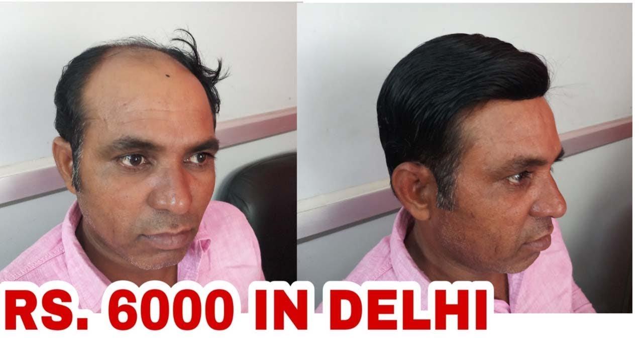 9717370851 Hair Weaving Rs 5500 Hair Weaving Cost Hair Weaving