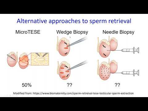The Main Difference Between Subfertility versus. Infertility