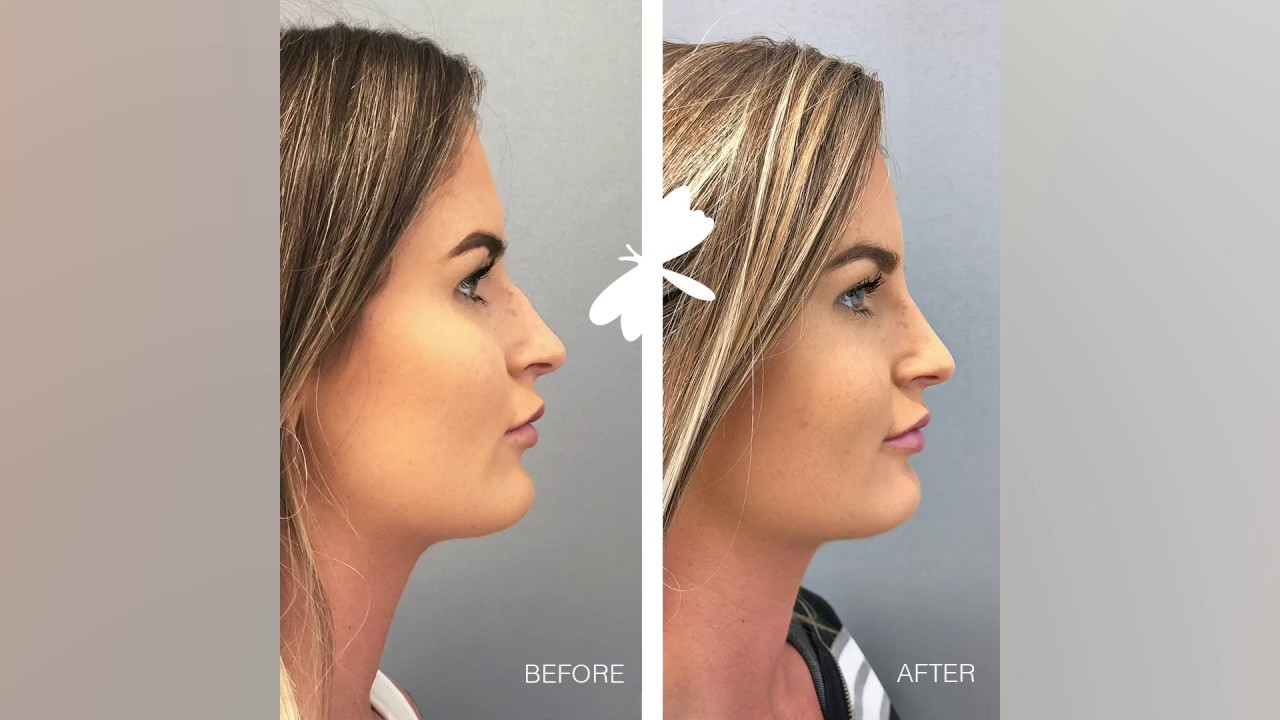 Non-Surgical Nose Reshaping | The Laser and Skin Clinic