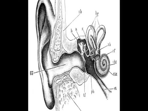 loud-high-pitched-ringing-in-ears?-see-what-i-found-in-my-ears!-tinnitus?-nope!