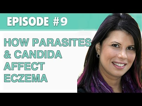 The Eczema Podcast S1E9: How Parasites and Candida Affect Your Eczema