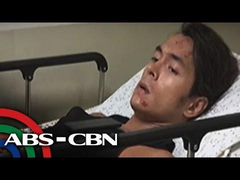 TV Patrol: Jake Cuenca, ooperahan dahil sa aksidente sa bisikleta