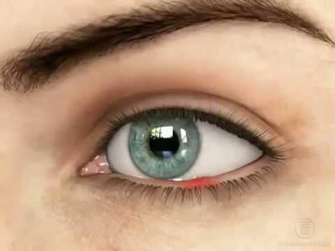 Ячмень на глазу :  причины и лечение