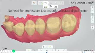 Bespoke Crowns, Bridges, Veneers, Dental Implants at The Eledent Clinic with aid of 3Shape Trios