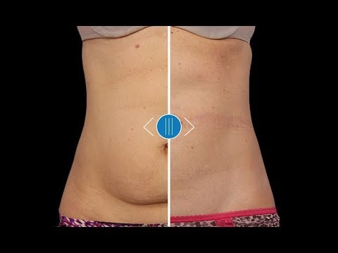 CoolSculpting Results: Female Abdomen