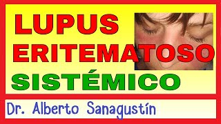 LUPUS ERITEMATOSO SISTÉMICO (LES) 🦋  Síntomas, Fisiopatología y Tratamiento.