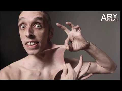 छि सबसे घिनोने अजीबोगरीब वर्ल्ड रिकॉर्ड Most Weirdest Guinness World Records Hindi