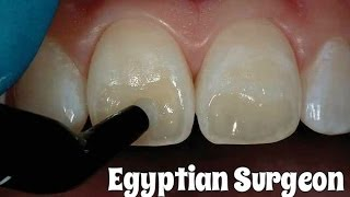 Dental Composite Restoration