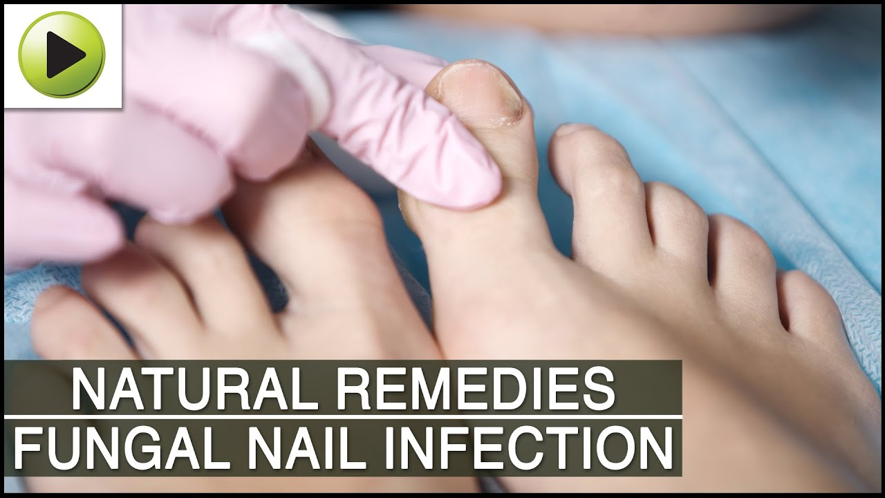 Home Remedies for Fungal Nail Infection - YouTube