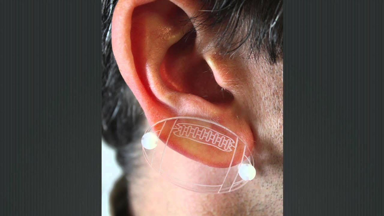 Pressure Earrings by Delasco to Aid Physicians in the Post ...