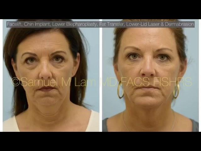 Dallas Deep-Plane Facelift, Chin Implant, Lower Eyelid Blepharoplasty, Fat Transfer,