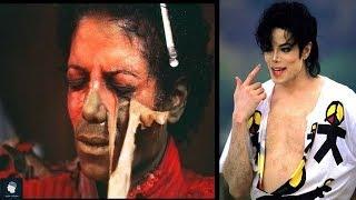 السبب الحقيقي وراء تغير لون بشرة مايكل جاكسون وعدم تعرضه للشمس
