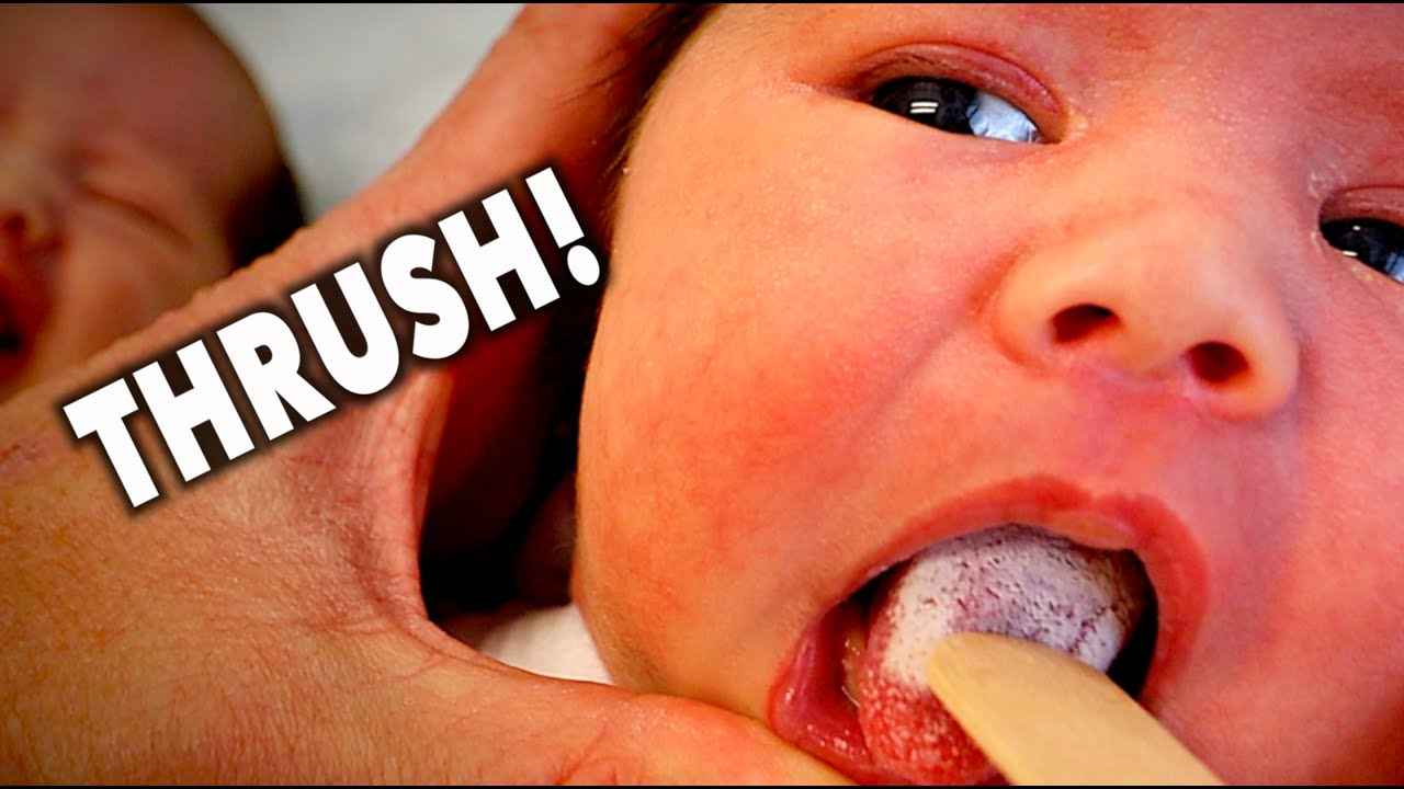 MY TWIN BABIES HAVE THRUSH!!! (Help)   Dr. Paul