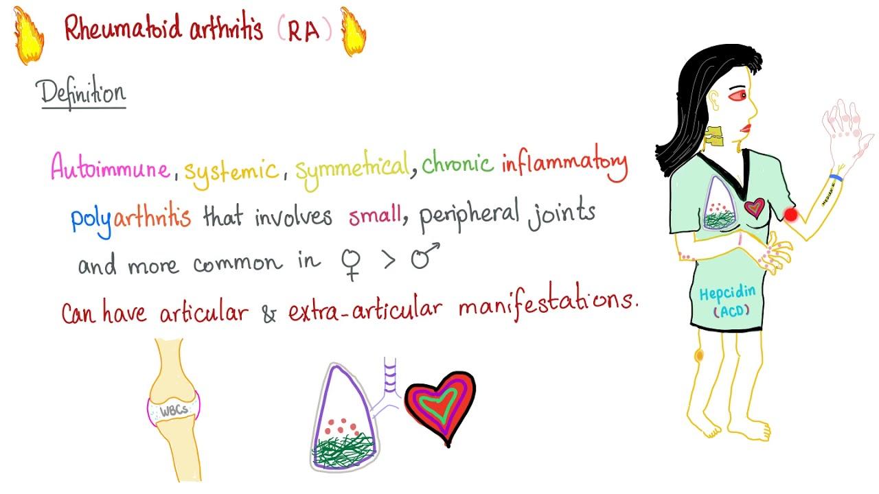 Definiție artrita