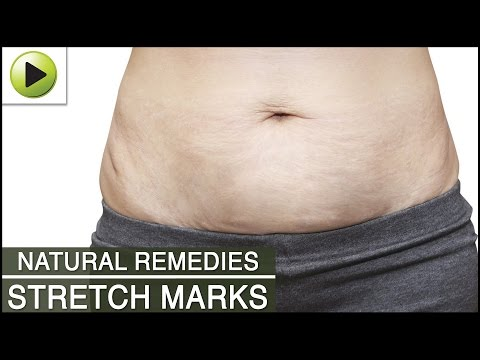 skin-care---stretch-marks---natural-ayurvedic-home-remedies