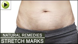 Skin Care - Stretch Marks - Natural Ayurvedic Home Remedies