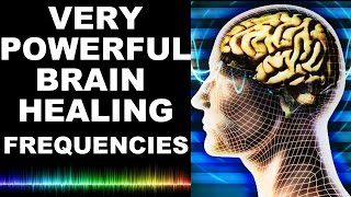 These extreme brain healing frequencies heal by aligning the brain ...