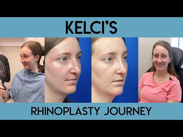 Kelci's Rhinoplasty Journey