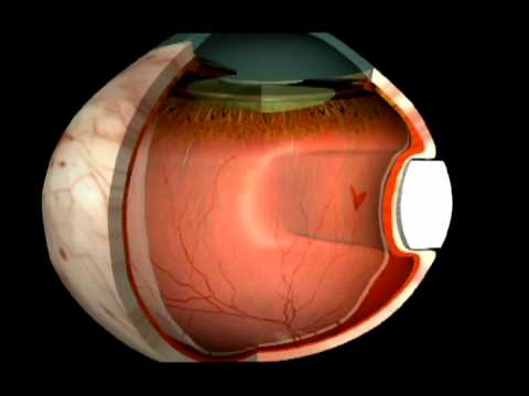 Отслоение сетчатки глаза - причины и лечение. Отслойка