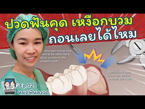 ปวดฟันคุดเหงือกบวม ถอนเลยได้ไหม หมอฟันลงจอ