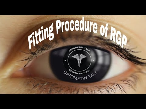 Fitting of RGP Contact Lens