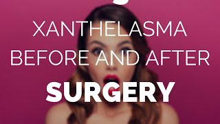 Xanthelasma before and after surgery, is it worth it?