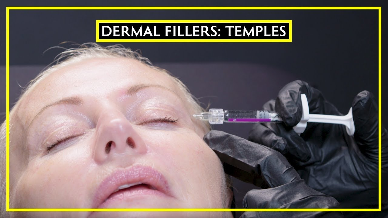 Temple Fillers For A Former Model