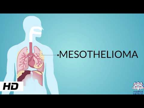 mesothelioma,-causes,-signs-and-symptoms,-diagnosis-and-treatment.
