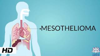 Asbestosis is a serious, progressive, long-term disease of the lungs. Asbestosis is not a cancer. In.