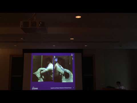 Posterior Shoulder Dislocations: Management of the Reverse Hill Sachs Lesion Part 1/2