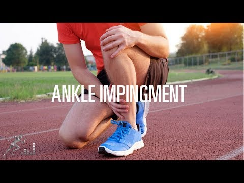 Ankle Impingement: Signs, Symptoms And Treatment Options