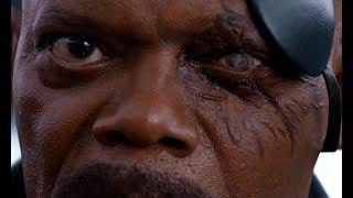 Как Ник Фьюри, глаз потерял
