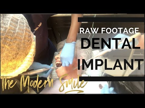 Dental Implant Surgery with Explanation of the Process