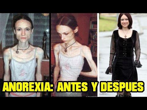 Fotos de modelos anorexicas antes y despues de adelgazar