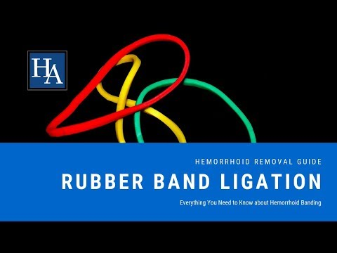 Rubber Band Ligation - Everything You Need To Know About Hemorrhoid Banding