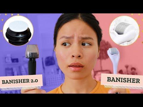Banisher Roller Vs Banisher 2.0 | Banish Acne Scars