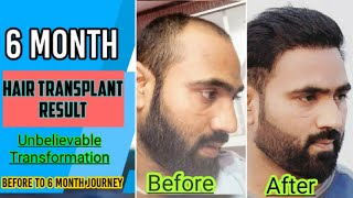 6 Month Hair Transplant Result (2019) | Day by day Hair Growth | Part 2