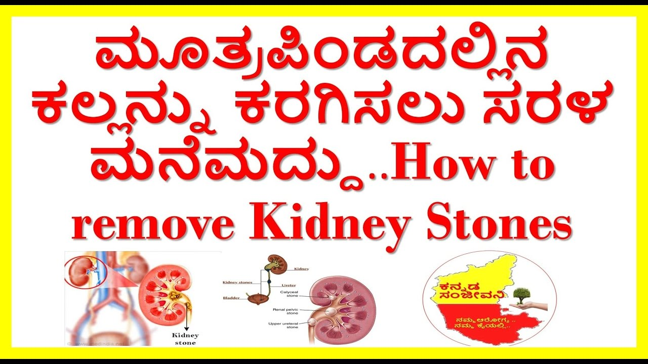 How To Dissolve Kidney Stones Naturally