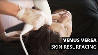 Venus Versa™ Skin Resurfacing Treatments