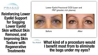 Addressing Loose and Draped Lower Eyelid Skin Mistaken for Puffy Eye Bags