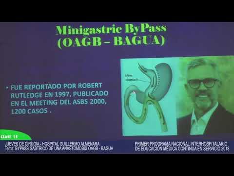 BYPASS GASTRICO DE UNA ANASTOMOSIS OAGB   BAGUA