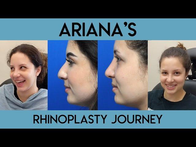 Ariana's Rhinoplasty Journey