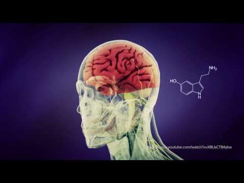 Мигрень - Болезни неврологии