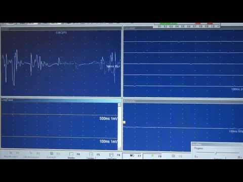 EMG JVC Reclutamineto Miopático