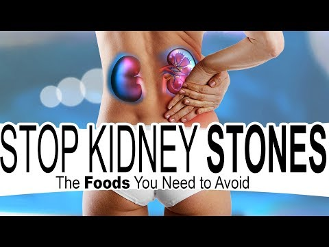 How To Stop Kidney Stones In 6 Easy Steps - Prevent Kidney Stones With Calcium...