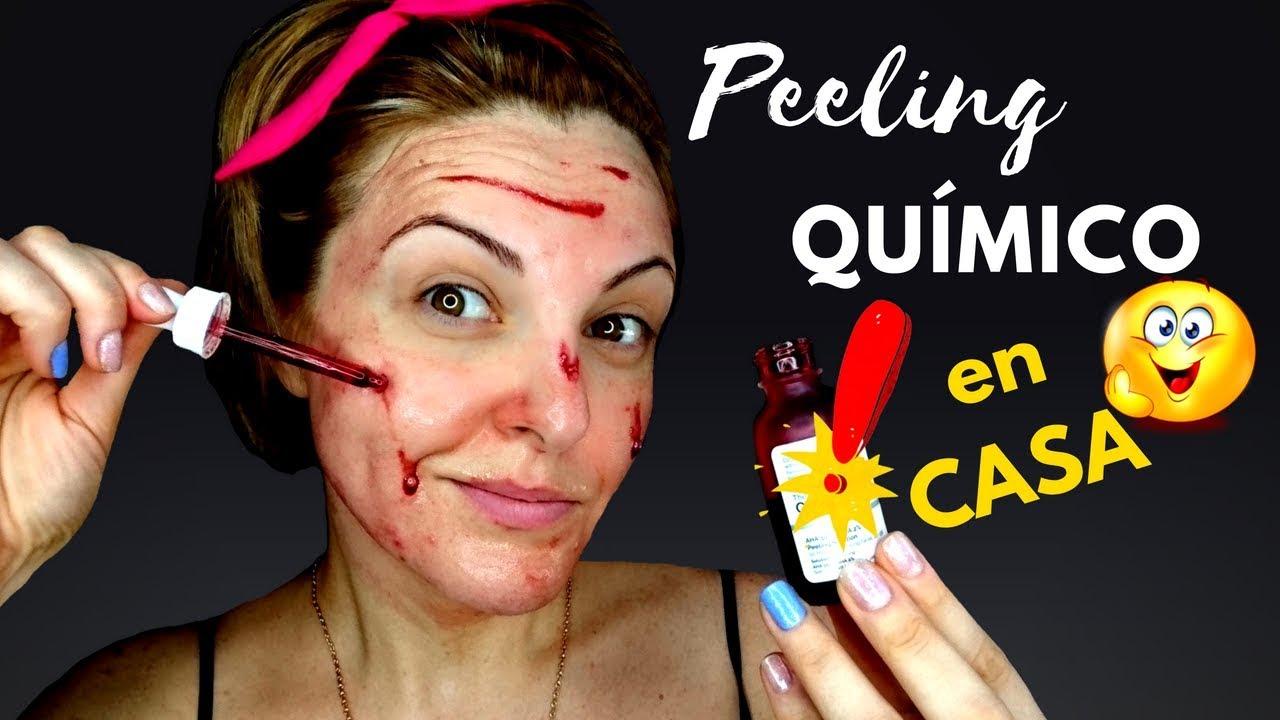 Productos para hacer peeling quimico
