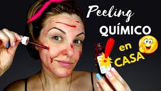 Peeling Químico en casa. Piel saludable y luminosa. Ordinary AHA-BHA