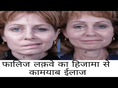 paralysis-laqwa-adhrang-falij-treatment-by-hijama-cupping-therapy
