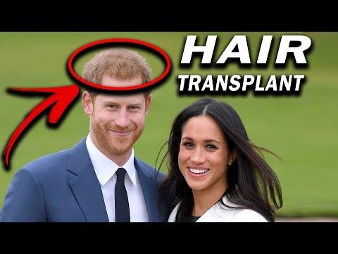 PRINCE HARRY HAIR TRANSPLANT FOR 50,000!!!