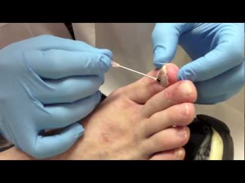 how to clean black dots from under tip o nail